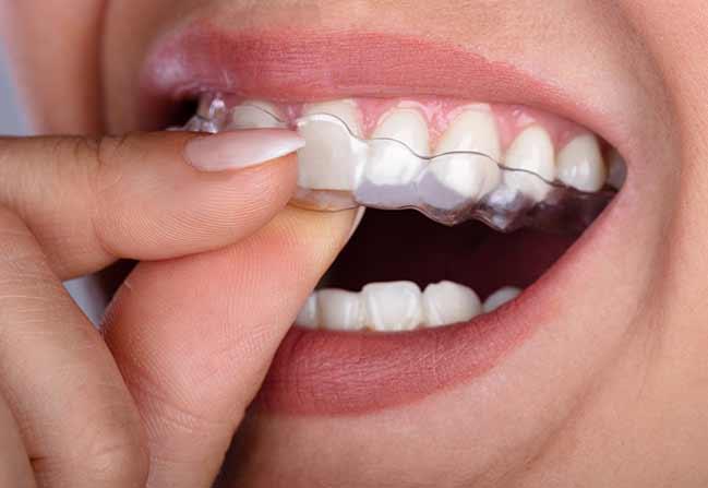 Clear Aligners | Katy Texas Dentist