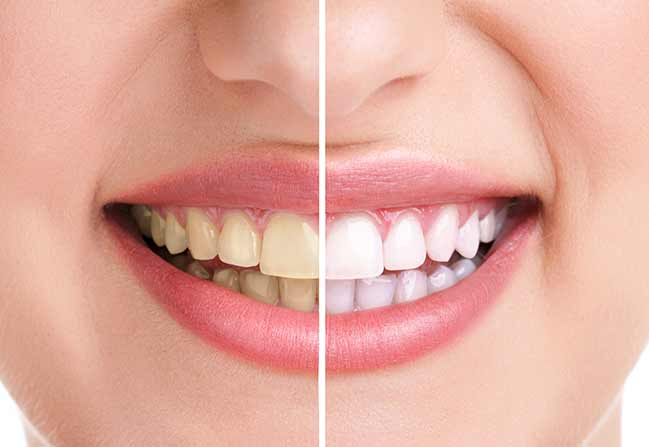 Teeth Whitening | Katy Texas Dentist