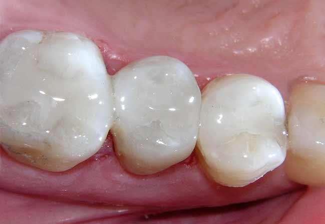 White Fillings | Katy Texas Dentist