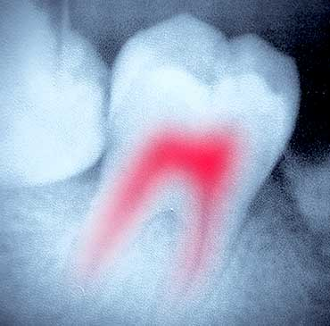 Root Canal Therapy   Katy Texas Dentist