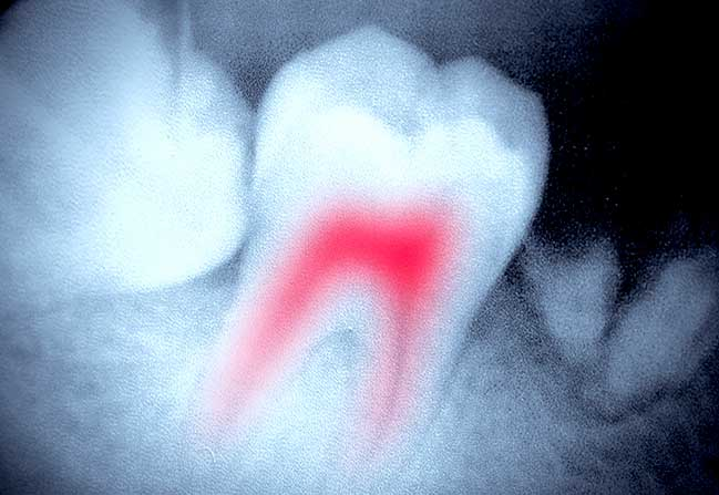 Root Canal Therapy | Katy Texas Dentist